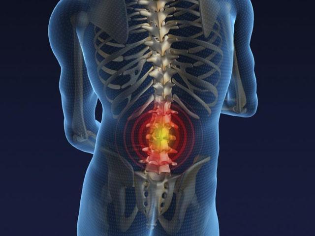 ¿Cuándo operar una hernia discal?