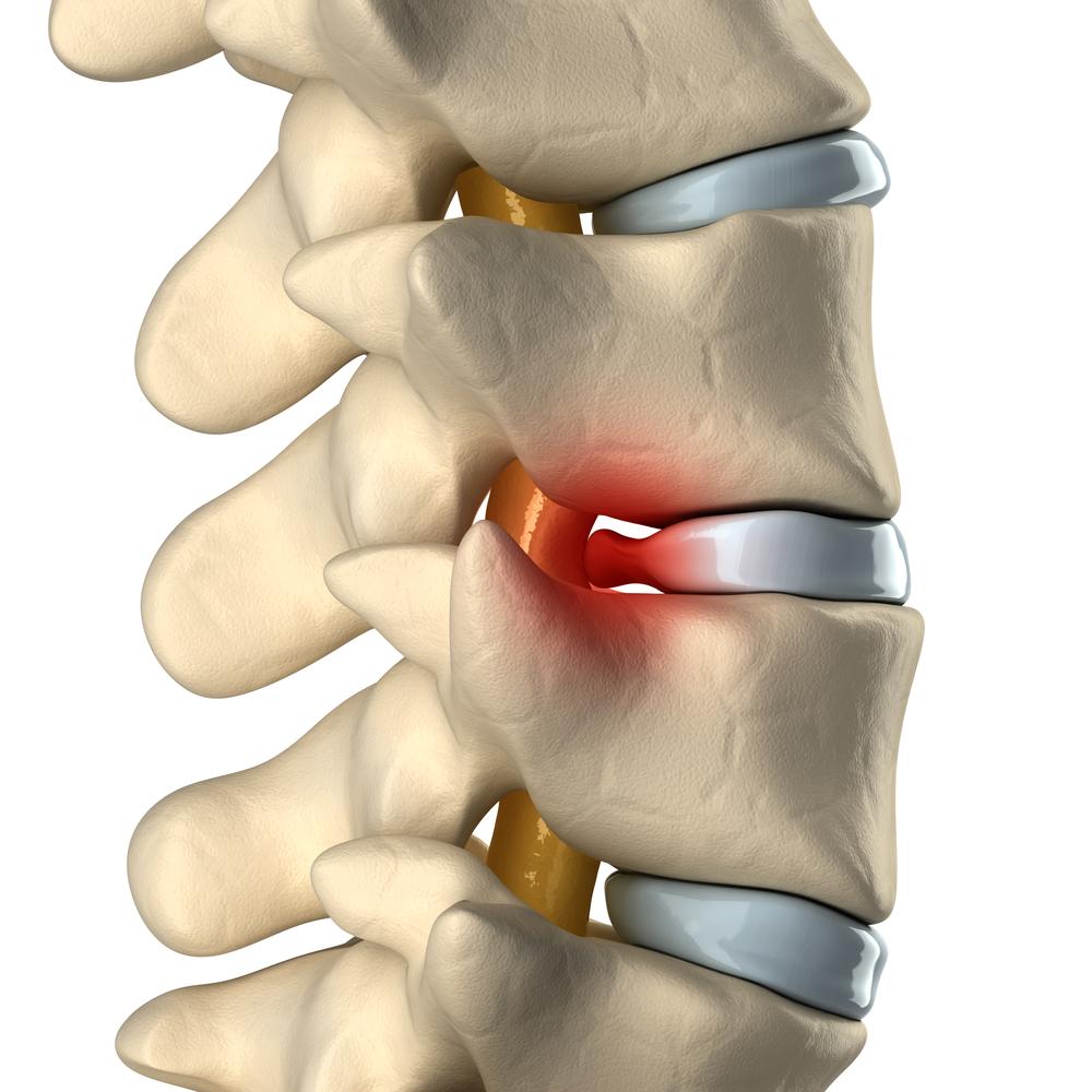 Tratamientos no quirúrgicos para la hernia