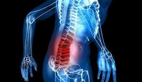 Ejercicios para aliviar dolor hernia discal